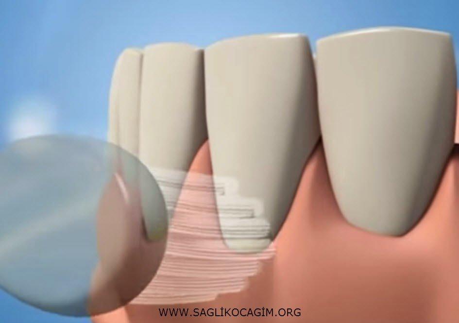 Diş ağrısına iyi gelen yöntemler
