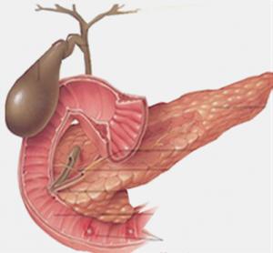 Pankreas kistleri belirtiler