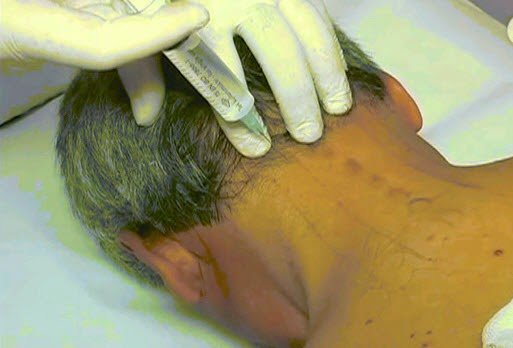 Proloterapi tedavisi nasıl yapılır
