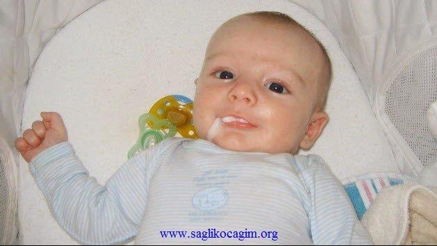 bebeklerde-kusma-neden-olur