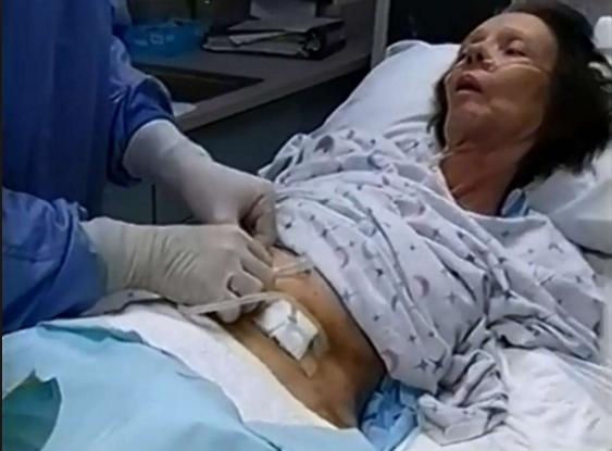 Perkütan endoskopik gastrostomi nedir