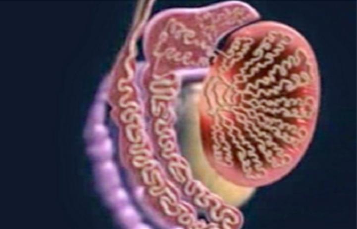 Testis tümörü neden olur