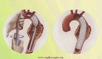 stent-nedir
