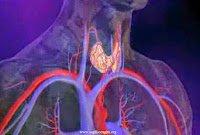 Hashimoto hastalığı tedavisi