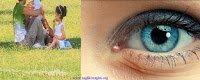 Göz kaşıntısı tedavisi