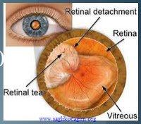 retina-dekolmani