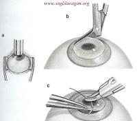 Kornea nakli ameliyatı nasıl yapılır