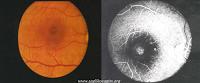 retine-dekolmani