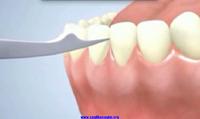 Diş eti çekilmesi belirtileri