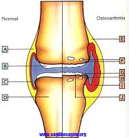 osteoartrit-nedir
