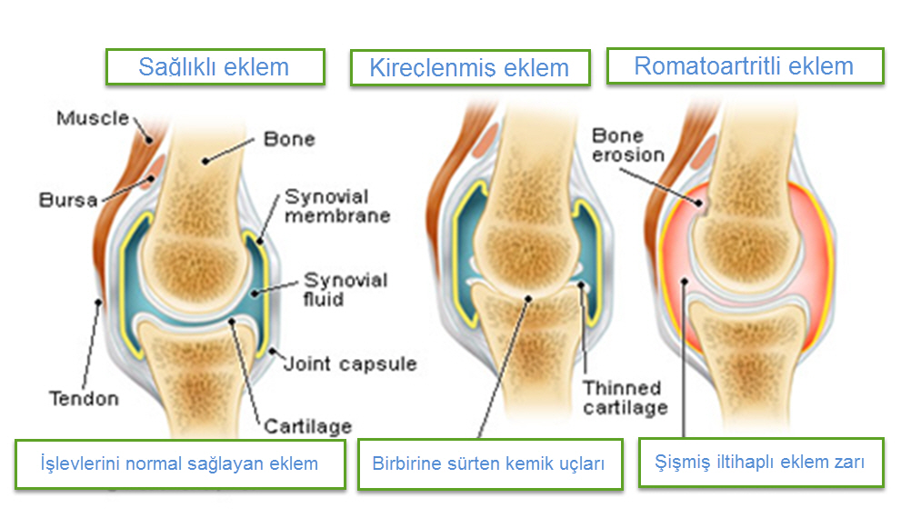 Romatoid artrit hastalığı neden olur