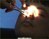 revizyon-burun-ameliyati
