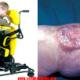 spina-bifida