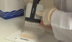 AIDS testi nedir