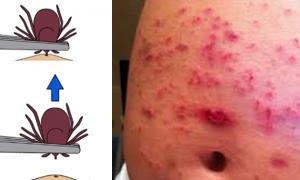 Lyme hastalığı nasıl önlenir