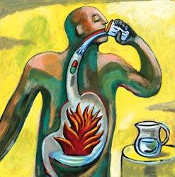Gastroözofageal Reflü Hastalığı ve Hiatus Hernisi Hastalığı Nedir?