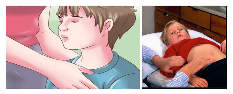 Hemolitik üremik  sendrom nedir