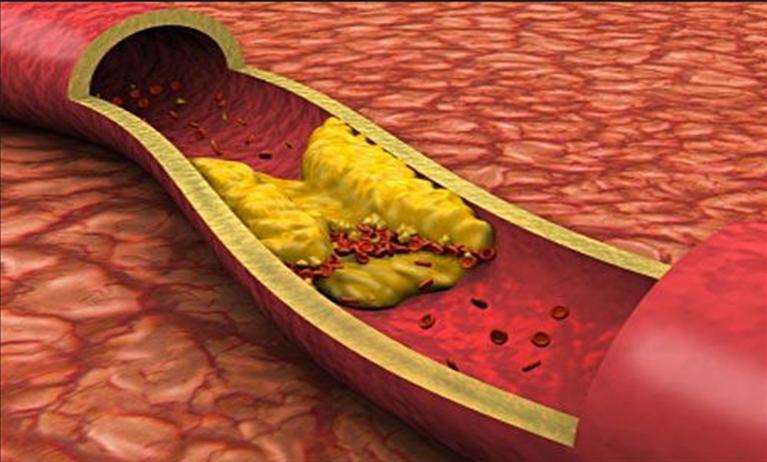 Kolesterol değerleri