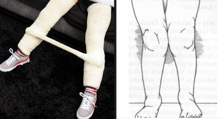 X bacak hastalığı nedir