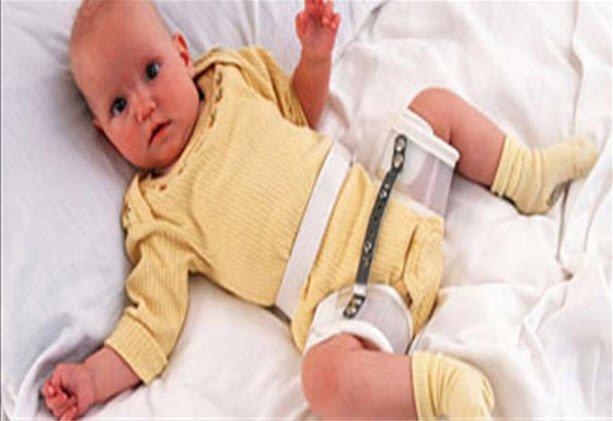 Çocuklarda kalça anomalileri