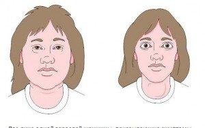 Konjenital adrenal hiperplazi tedavisi