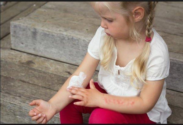 Çocuklarda kontakt dermatit neden olur
