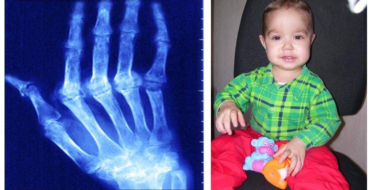 Jüvenil romatoid artrit nedir