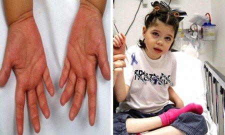 Çocuklarda addison hastalığı neden olur