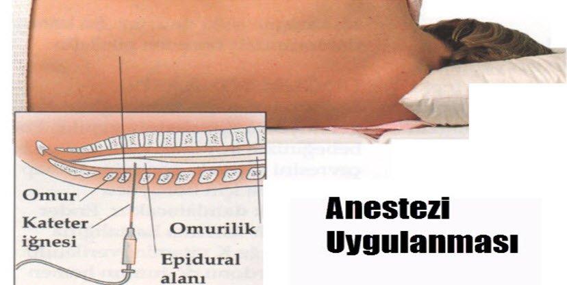 Doğum ağrıları için epidural anestezi nedir