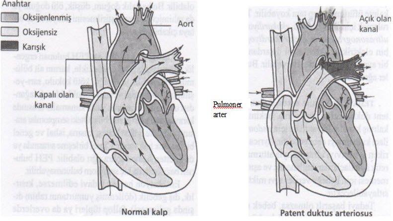 Patent duktus arteriosus nedir