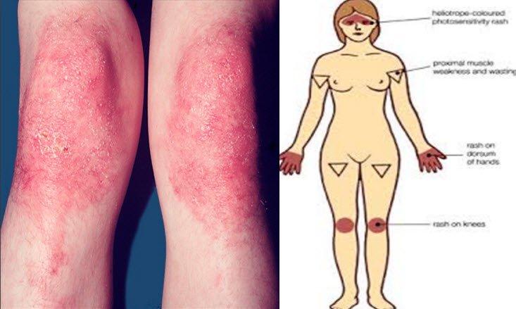 Polimiyozit hastalığı nedir