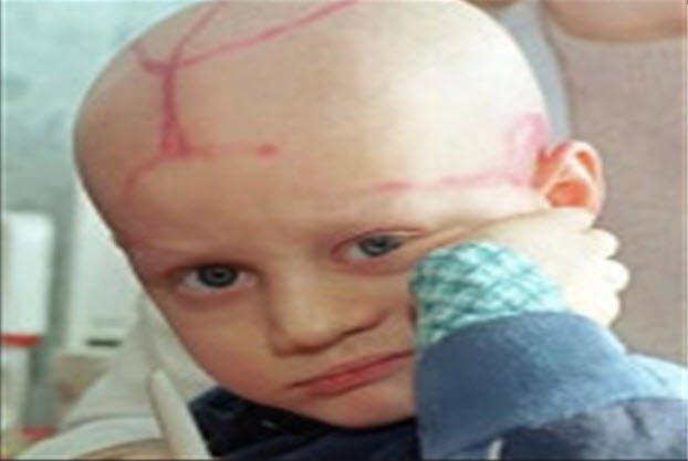 Çocuklarda beyin tümörü olur mu