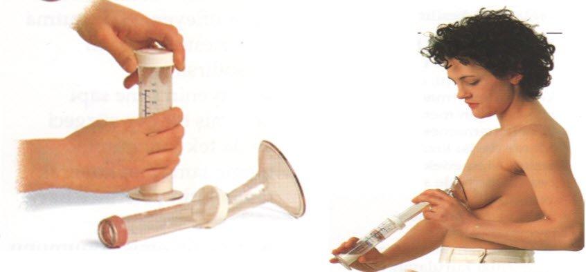 Meme pompası ile süt boşaltma yöntemleri