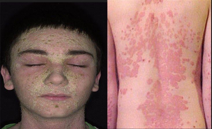 Çocuklarda psoriasis neden olur