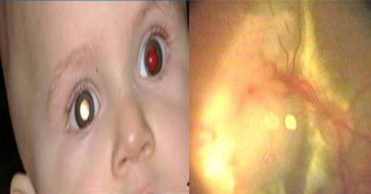Retinoblastom neden olur