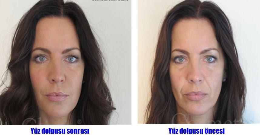 Yüz dolgusu öncesi ve sonrası