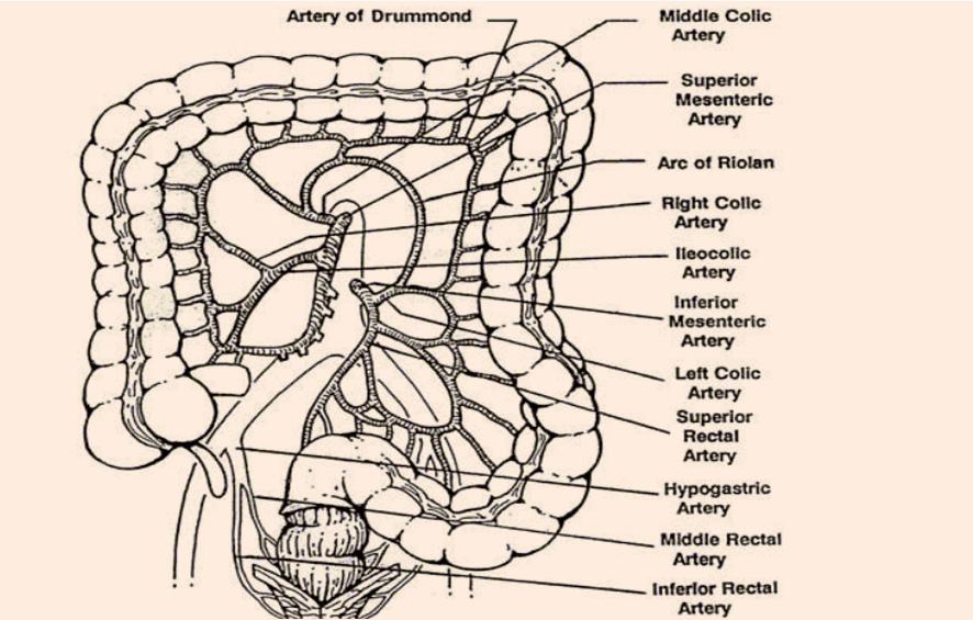Süperior mezenterik arter sendromu nedir