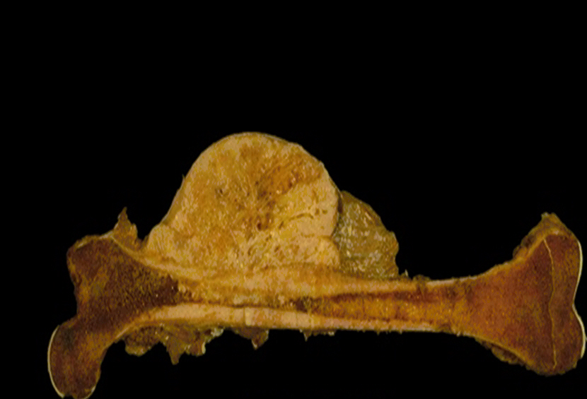 Osteojenik sarkom neden olur