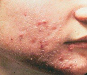 Cleocin hangi hastalıklarda kullanılır