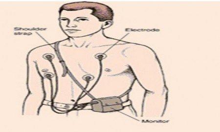 Ayaktan EKG nasıl çekilir