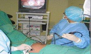 Histerektomi ameliyatı nedir