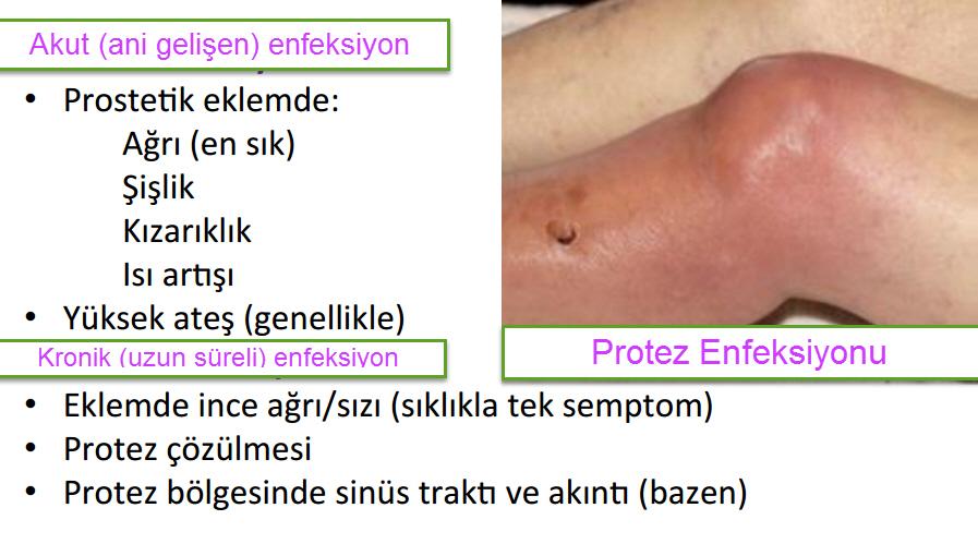 Diz protezi enfeksiyonu belirtileri