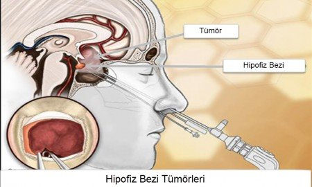 Hipofiz bezi tümörleri neden olur