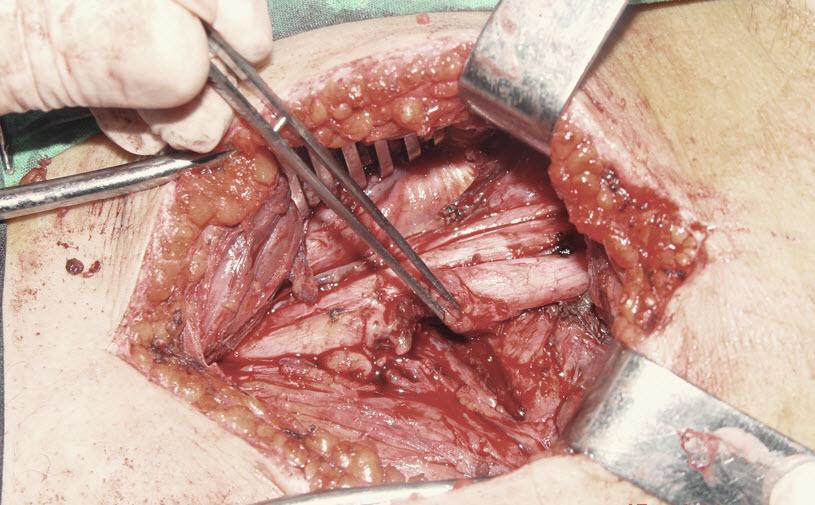 Periferal sinir hasarı iyileşir mi