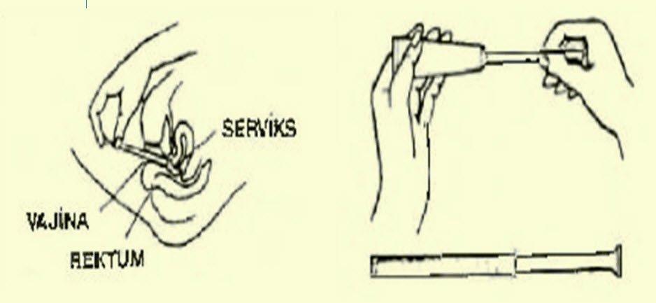 Cleocin krem ve apiklatörün kullanımı