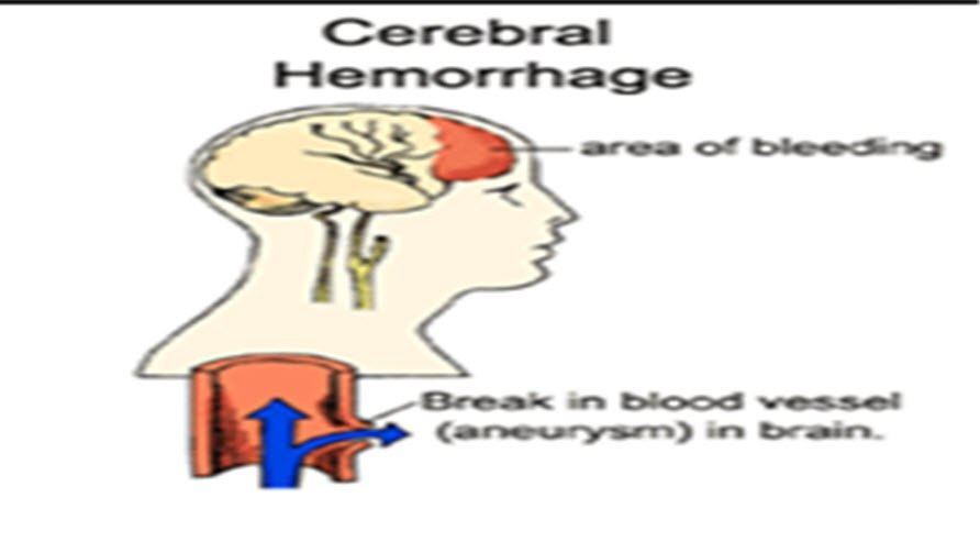 İntraserebral hemoraji neden olur