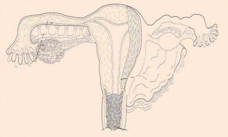 Progesteron nedir