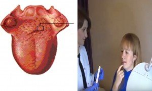 Dil ve ağız yarası neden olur