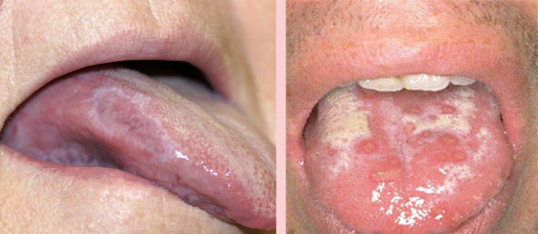 Dil ve ağız yaralarına neden olan hastalıklar