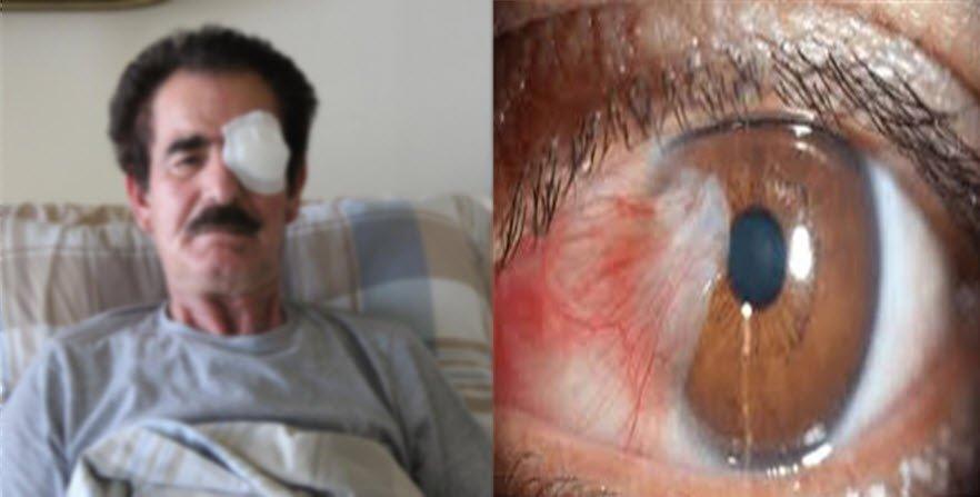 Fusix göz damlası ne için kullanılır